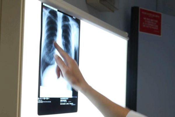 Cancer-du-poumon-une-etape-franchie-pour-un-nouveau-test-de-depistage