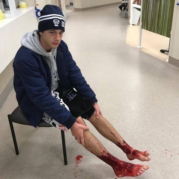 Blessures aux jambes d'un jeune Australien (640x640)