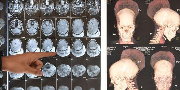Une tumeur au cerveau d'un poids record opérée en Inde